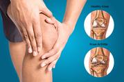 Knee Pain Treatment Frisco